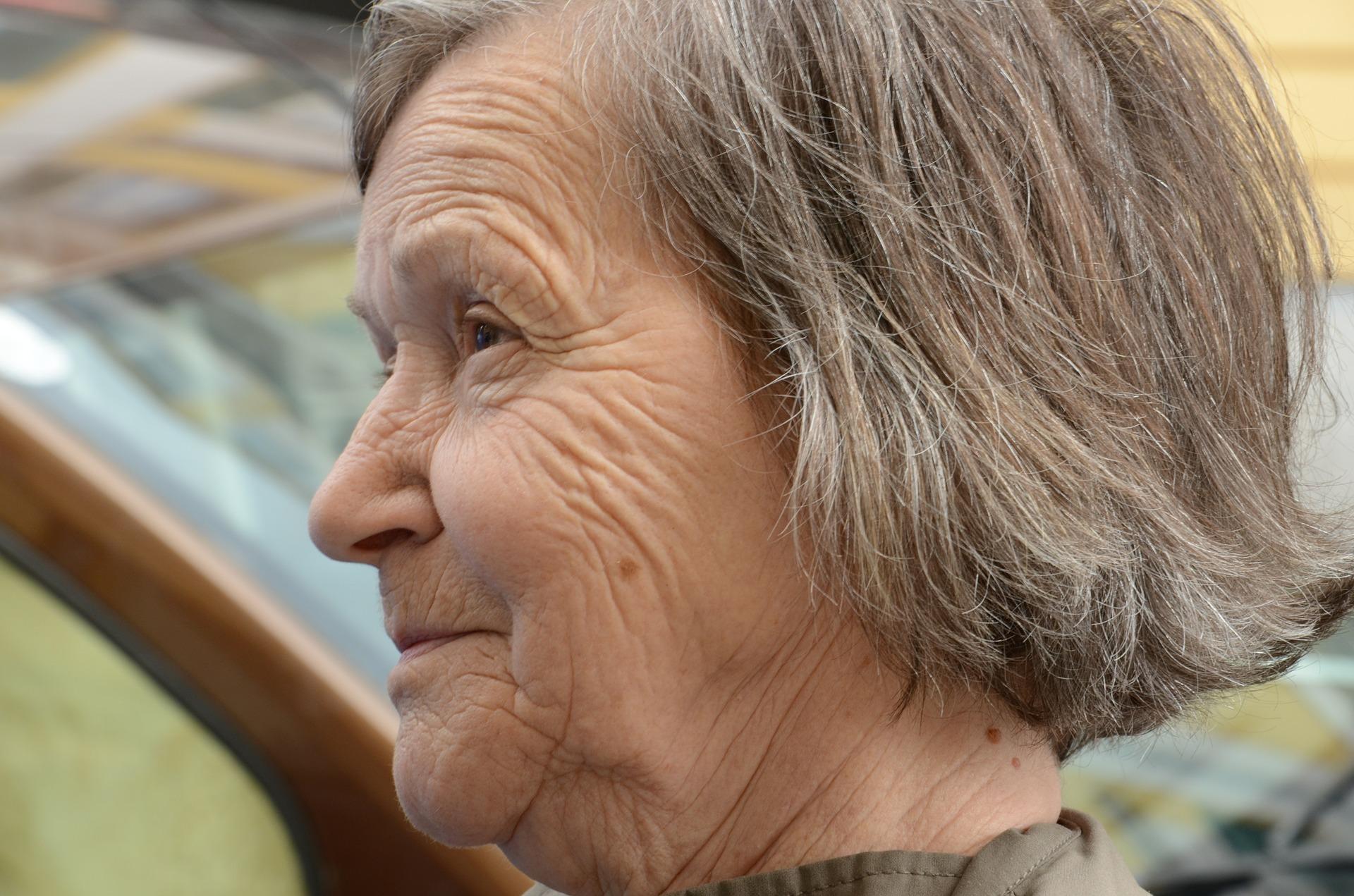 Der Kampf mit den Altern – Falten vermeiden! auf meinegeschichten.de